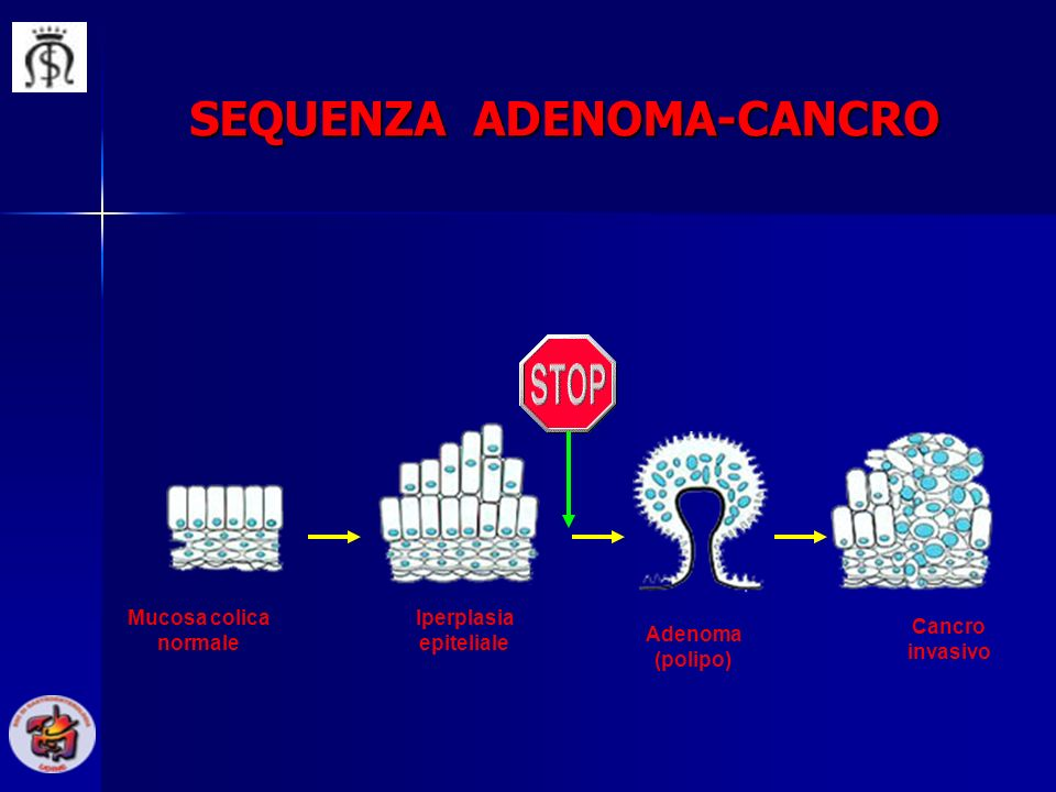 SEQUENZA ADENOMA-CANCRO