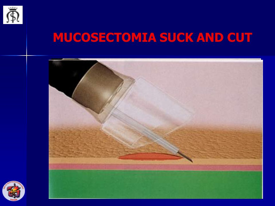MUCOSECTOMIA SUCK AND CUT