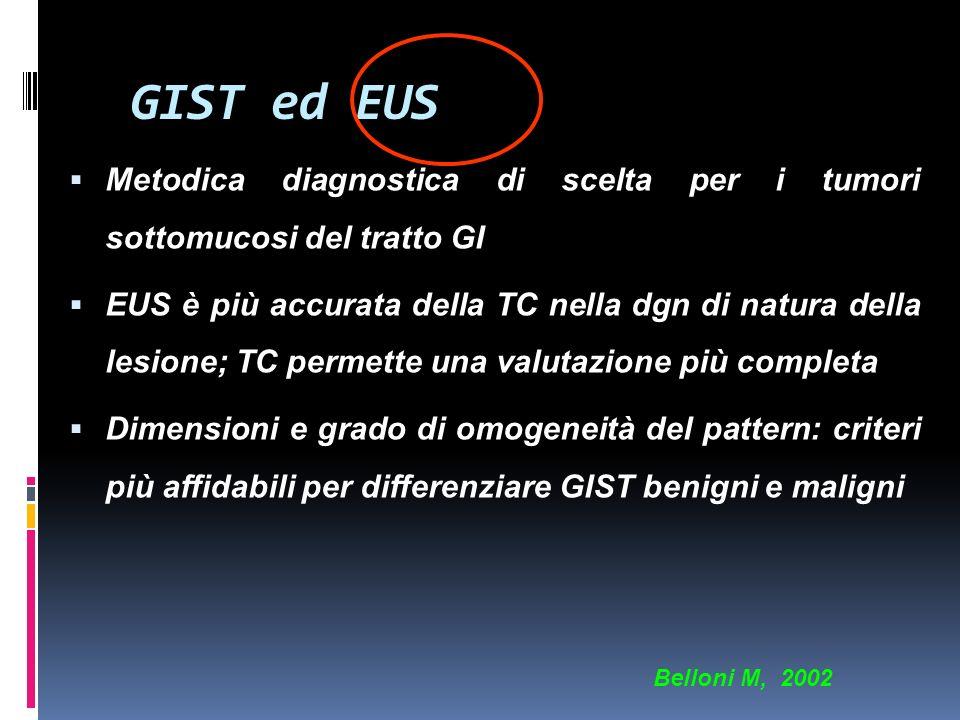 GIST ed EUS Metodica diagnostica di scelta per i tumori sottomucosi del tratto GI.