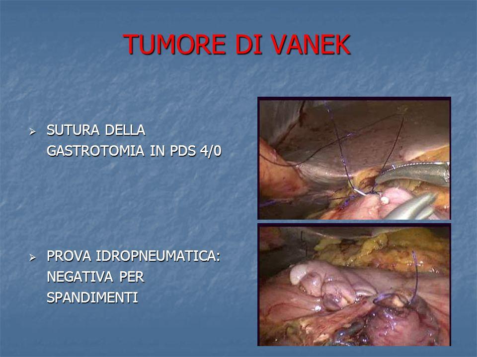TUMORE DI VANEK SUTURA DELLA GASTROTOMIA IN PDS 4/0