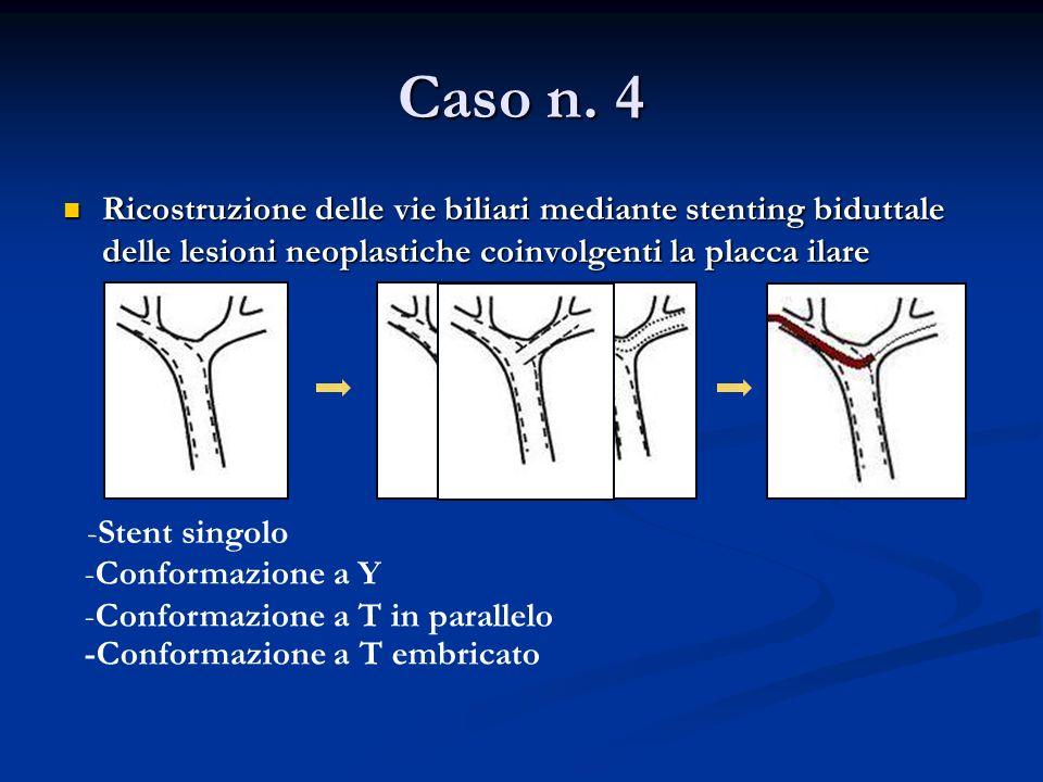 Caso n. 4 Ricostruzione delle vie biliari mediante stenting biduttale delle lesioni neoplastiche coinvolgenti la placca ilare.
