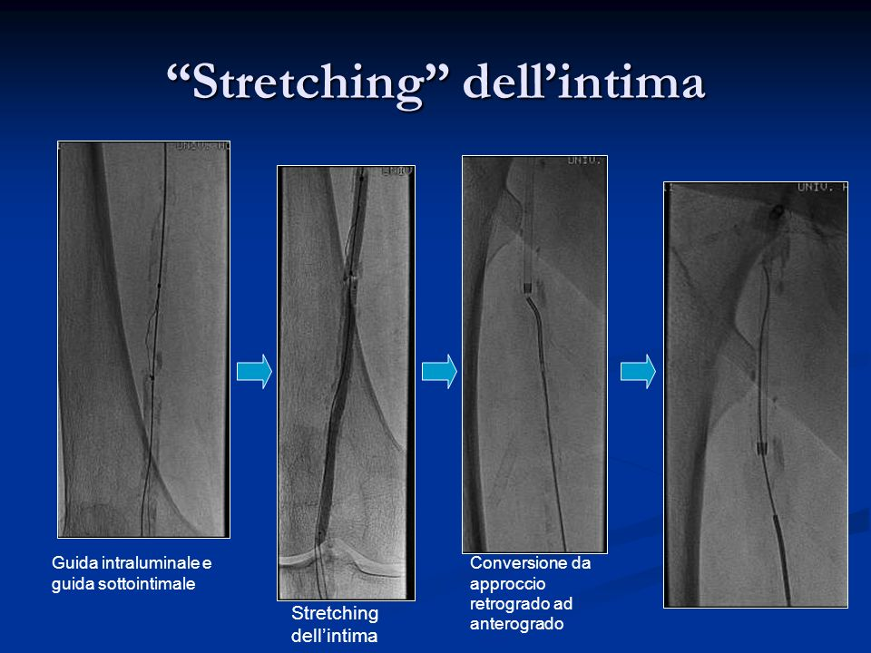 Stretching dell'intima