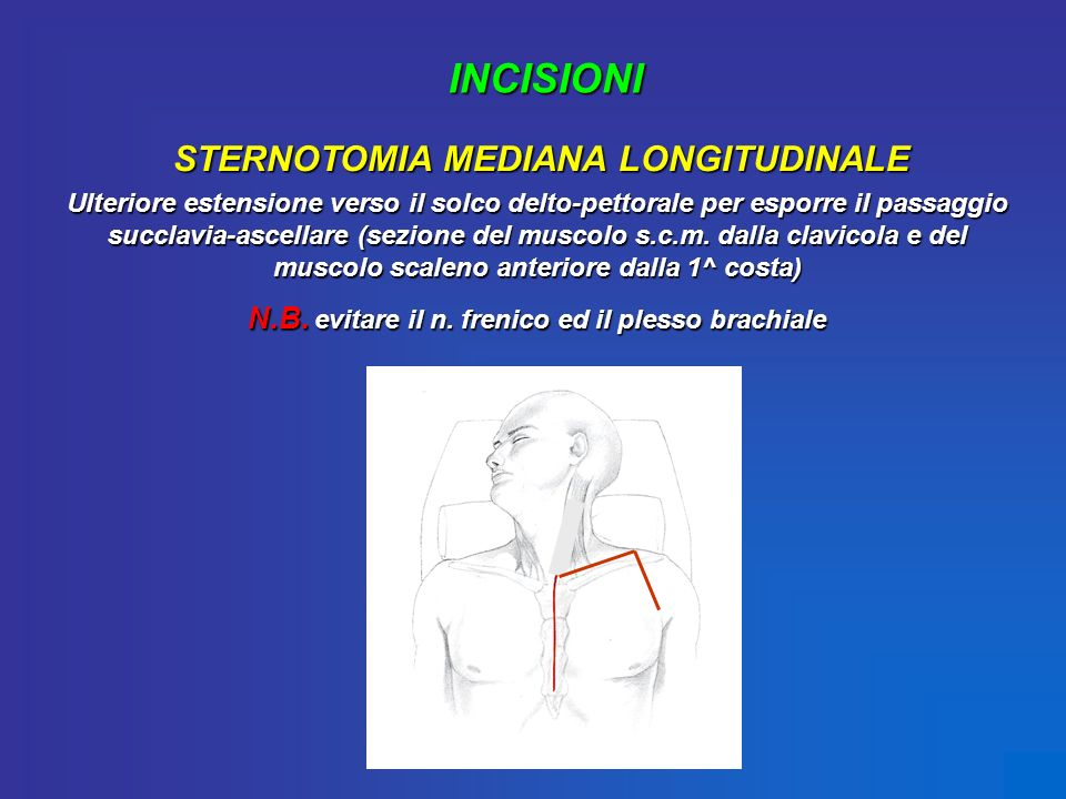 INCISIONI STERNOTOMIA MEDIANA LONGITUDINALE