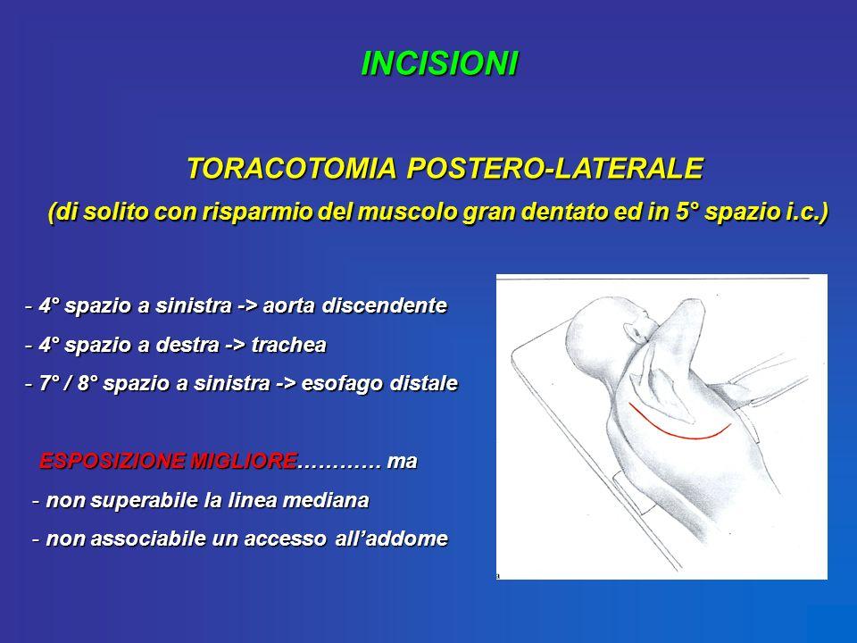 TORACOTOMIA POSTERO-LATERALE