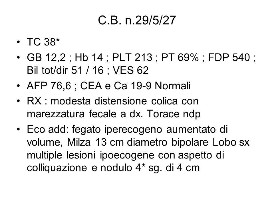 C.B. n.29/5/27TC 38* GB 12,2 ; Hb 14 ; PLT 213 ; PT 69% ; FDP 540 ; Bil tot/dir 51 / 16 ; VES 62. AFP 76,6 ; CEA e Ca 19-9 Normali.