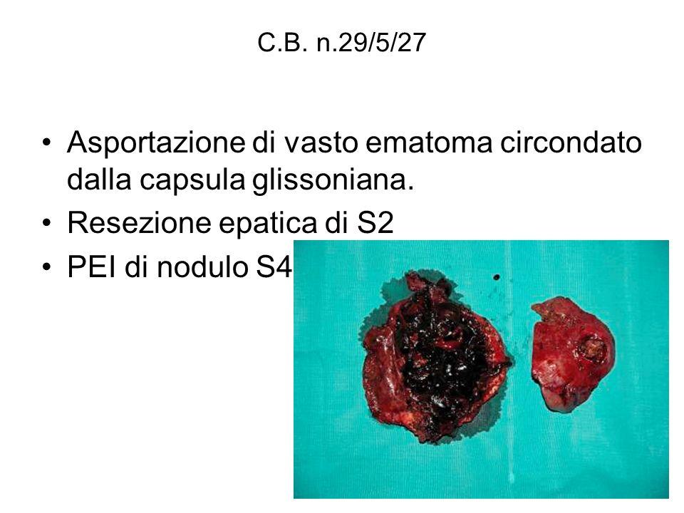 Asportazione di vasto ematoma circondato dalla capsula glissoniana.