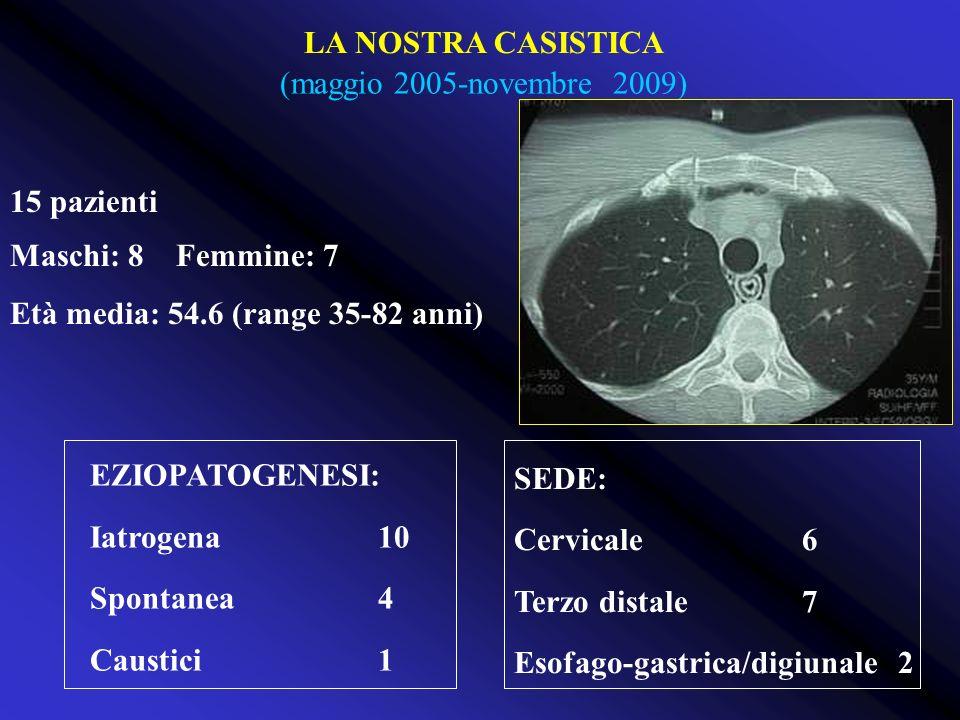 LA NOSTRA CASISTICA (maggio 2005-novembre 2009) 15 pazienti. Maschi: 8 Femmine: 7. Età media: 54.6 (range 35-82 anni)