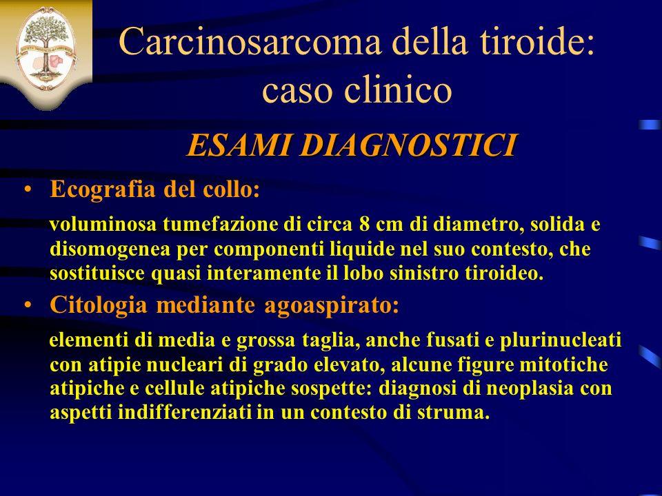 Carcinosarcoma della tiroide: caso clinico