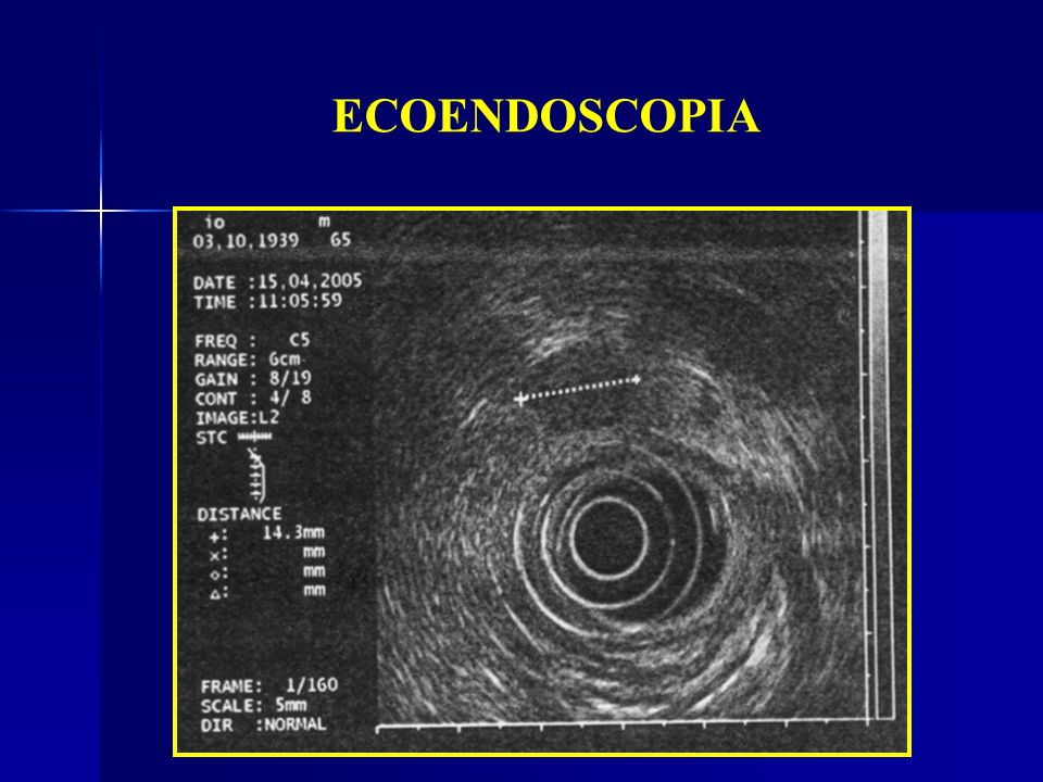 ECOENDOSCOPIA