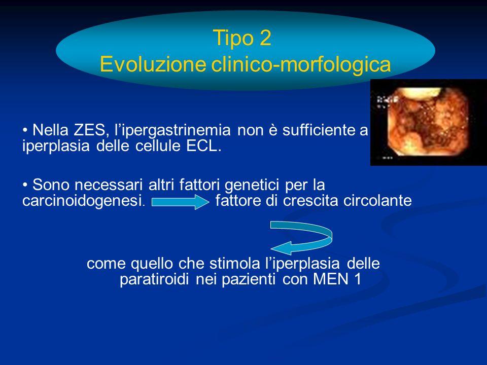 Tipo 2 Evoluzione clinico-morfologica