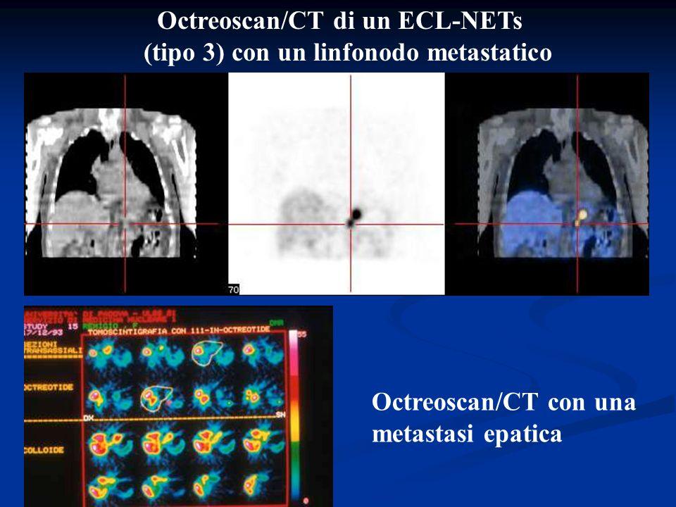 Octreoscan/CT di un ECL-NETs