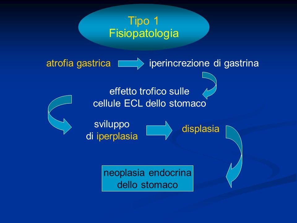Tipo 1 Fisiopatologia atrofia gastrica iperincrezione di gastrina