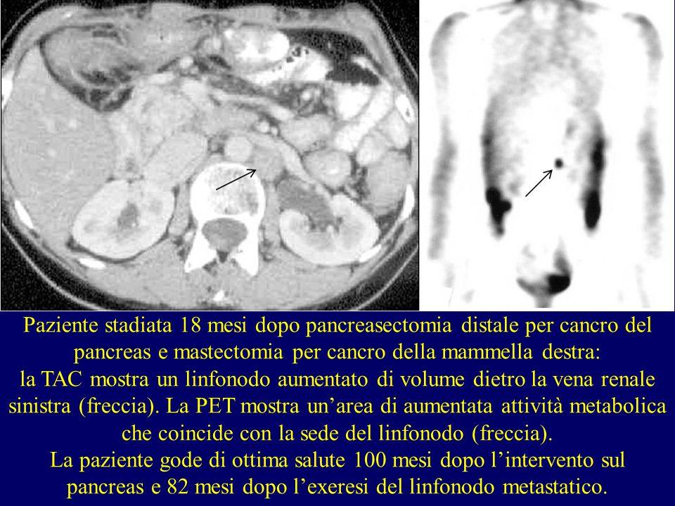 Paziente stadiata 18 mesi dopo pancreasectomia distale per cancro del pancreas e mastectomia per cancro della mammella destra: