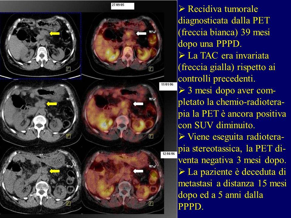 Recidiva tumorale diagnosticata dalla PET (freccia bianca) 39 mesi dopo una PPPD.