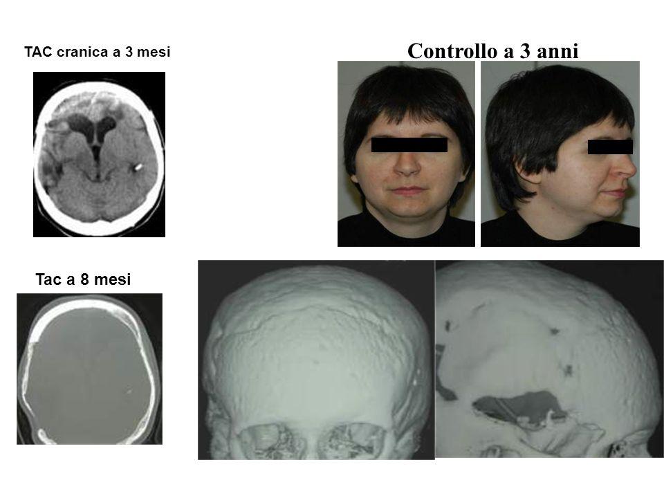 Controllo a 3 anni TAC cranica a 3 mesi Tac a 8 mesi A tre anni