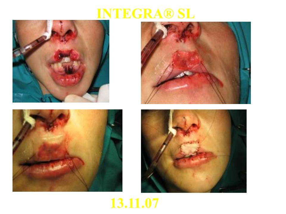 INTEGRA® SL 13.11.07