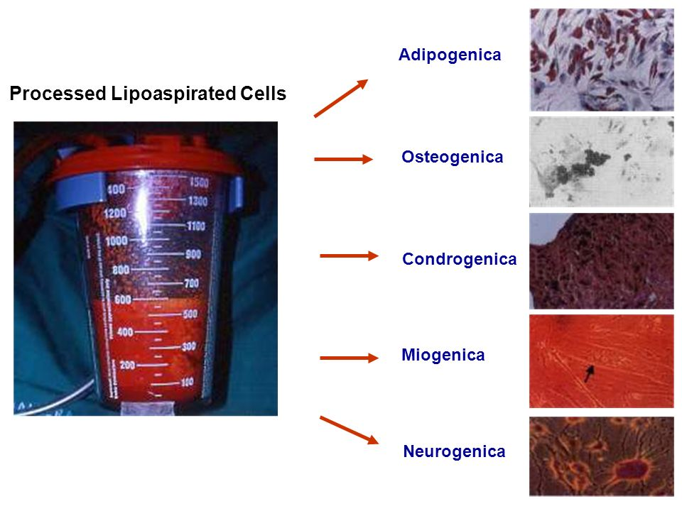 Processed Lipoaspirated Cells