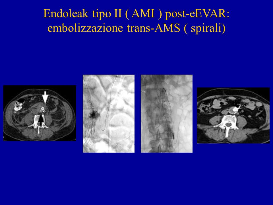 Endoleak tipo II ( AMI ) post-eEVAR: