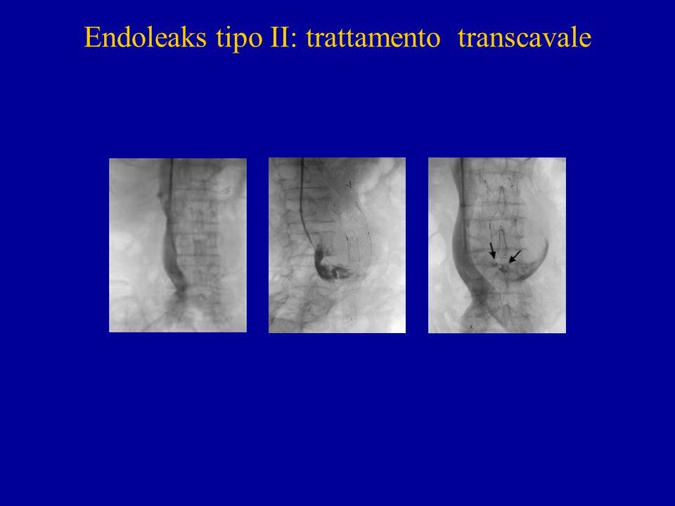 Endoleaks tipo II: trattamento transcavale