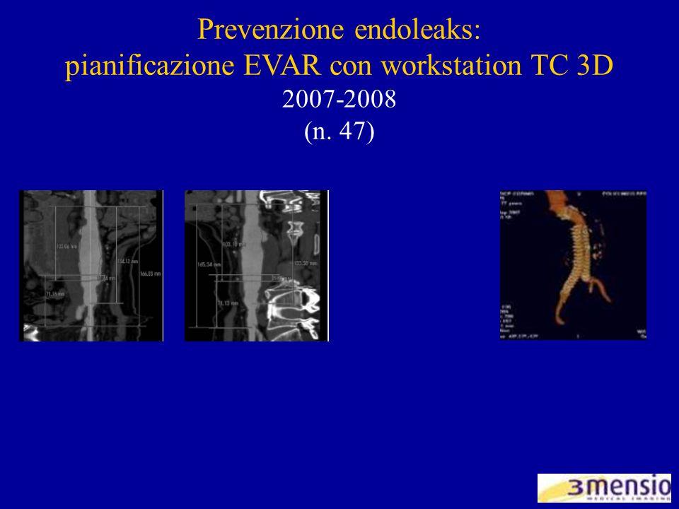 Prevenzione endoleaks: pianificazione EVAR con workstation TC 3D