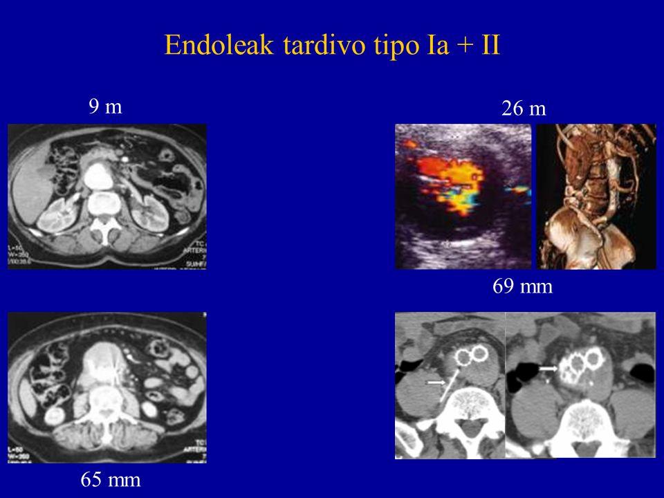 Endoleak tardivo tipo Ia + II