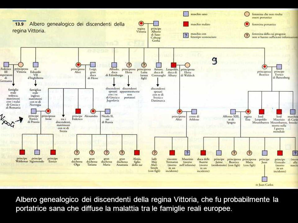 Albero genealogico dei discendenti della regina Vittoria, che fu probabilmente la portatrice sana che diffuse la malattia tra le famiglie reali europee.