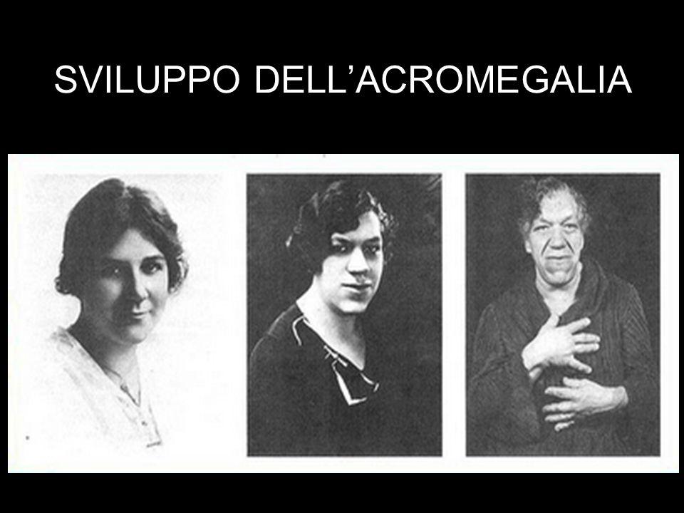 SVILUPPO DELL'ACROMEGALIA
