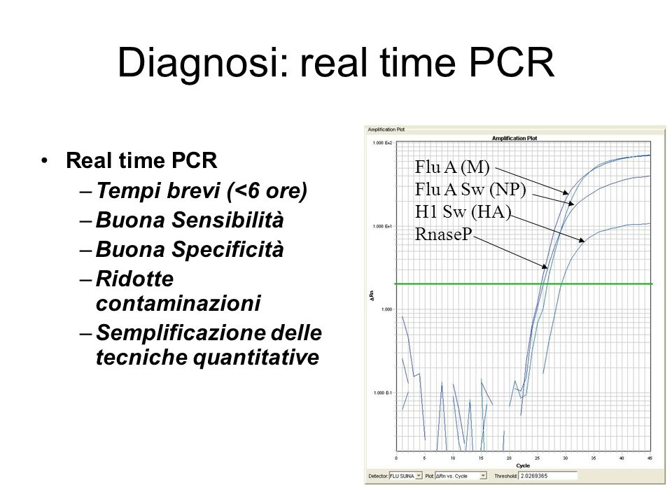 Diagnosi: real time PCR