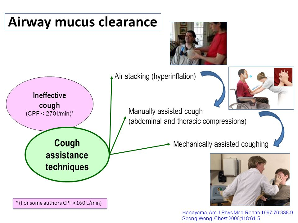 Airway mucus clearance