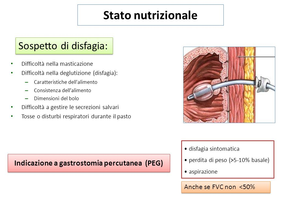 Indicazione a gastrostomia percutanea (PEG)
