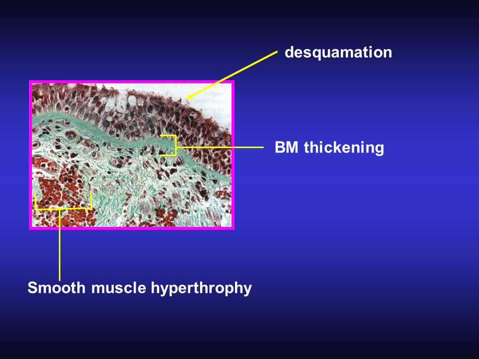 desquamation BM thickening Smooth muscle hyperthrophy