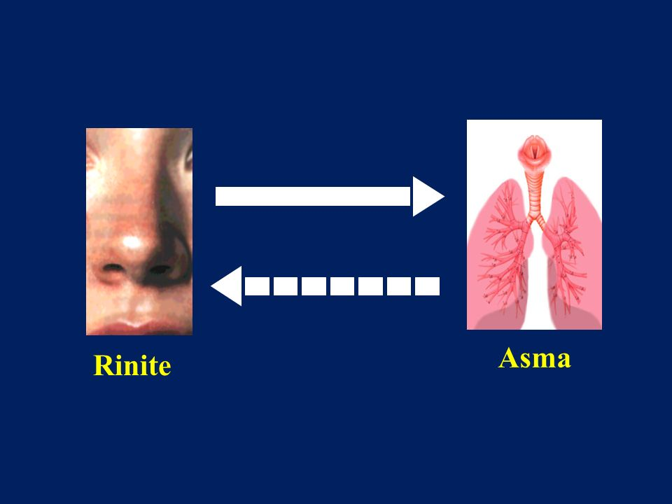 Il legame bidirezionale asma rinite appare dunque piuttosto chiaro.