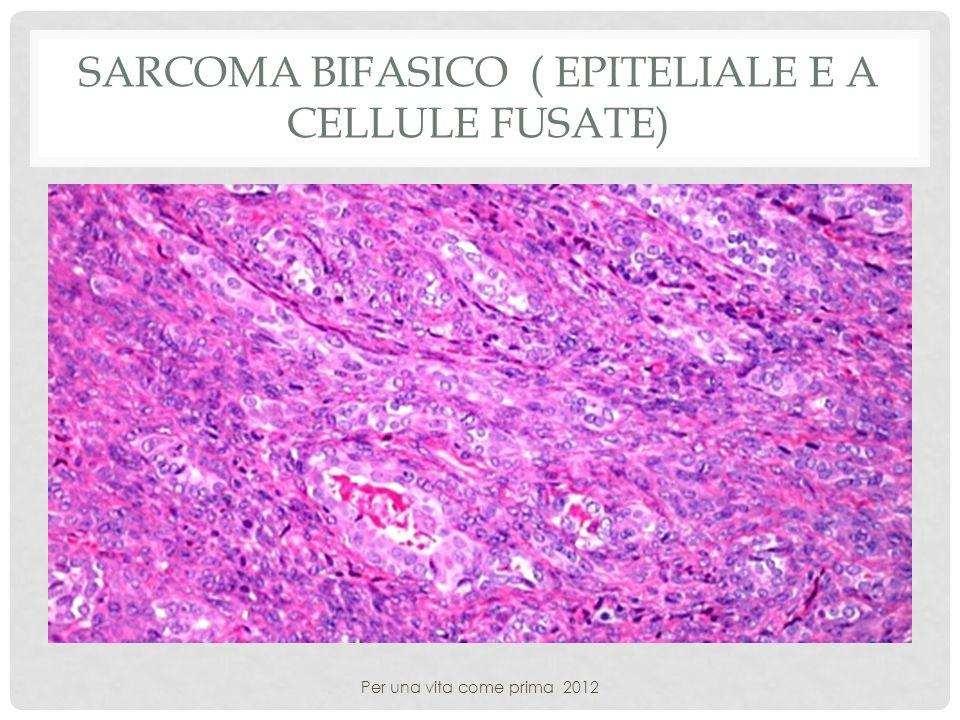 Sarcoma bifasico ( epiteliale e a cellule fusate)