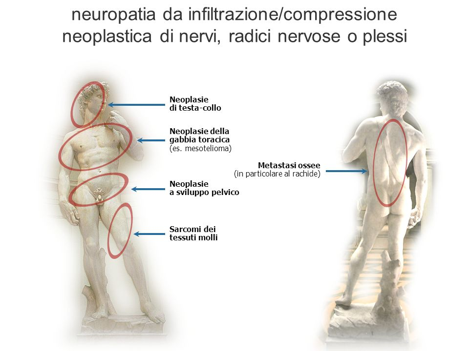 neuropatia da infiltrazione/compressione neoplastica di nervi, radici nervose o plessi