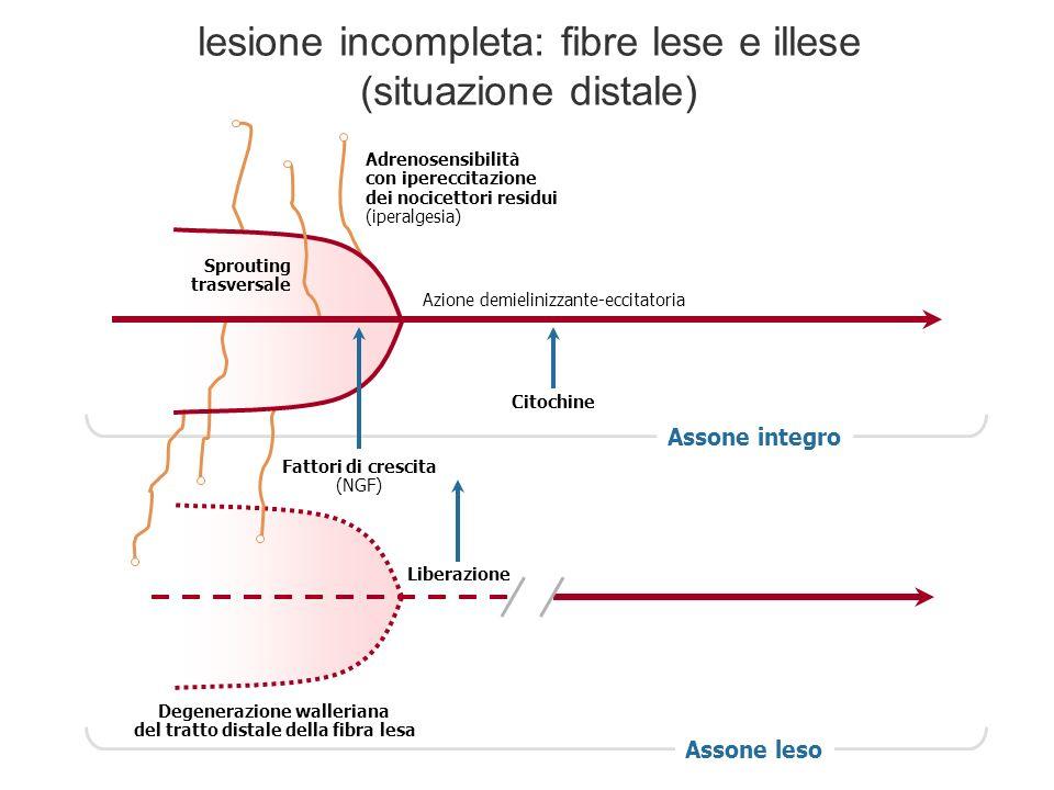 lesione incompleta: fibre lese e illese (situazione distale)