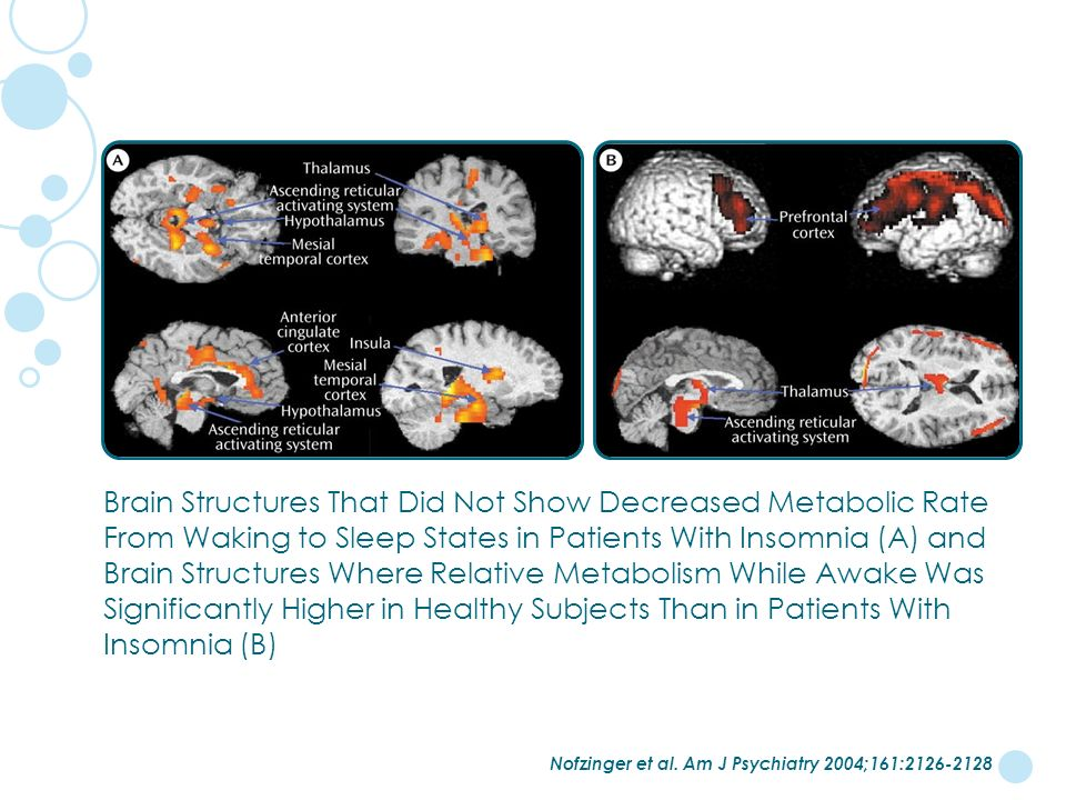 Brain Structures That Did Not Show Decreased Metabolic Rate From Waking to Sleep States in Patients With Insomnia (A) and Brain Structures Where Relative Metabolism While Awake Was Significantly Higher in Healthy Subjects Than in Patients With Insomnia (B)