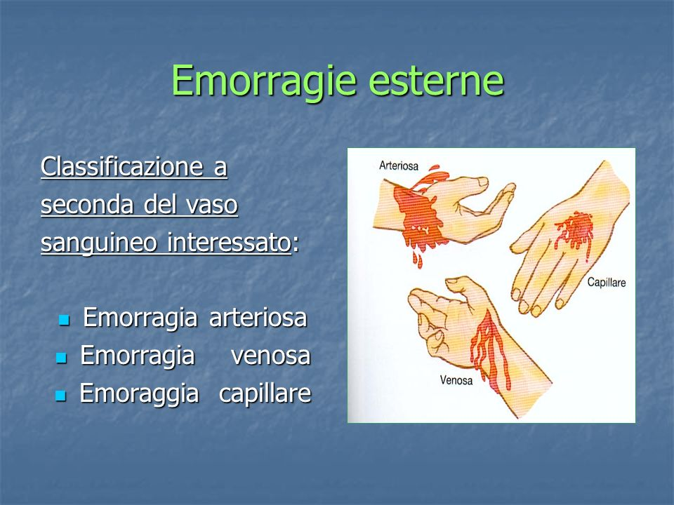 Emorragie esterne Classificazione a seconda del vaso