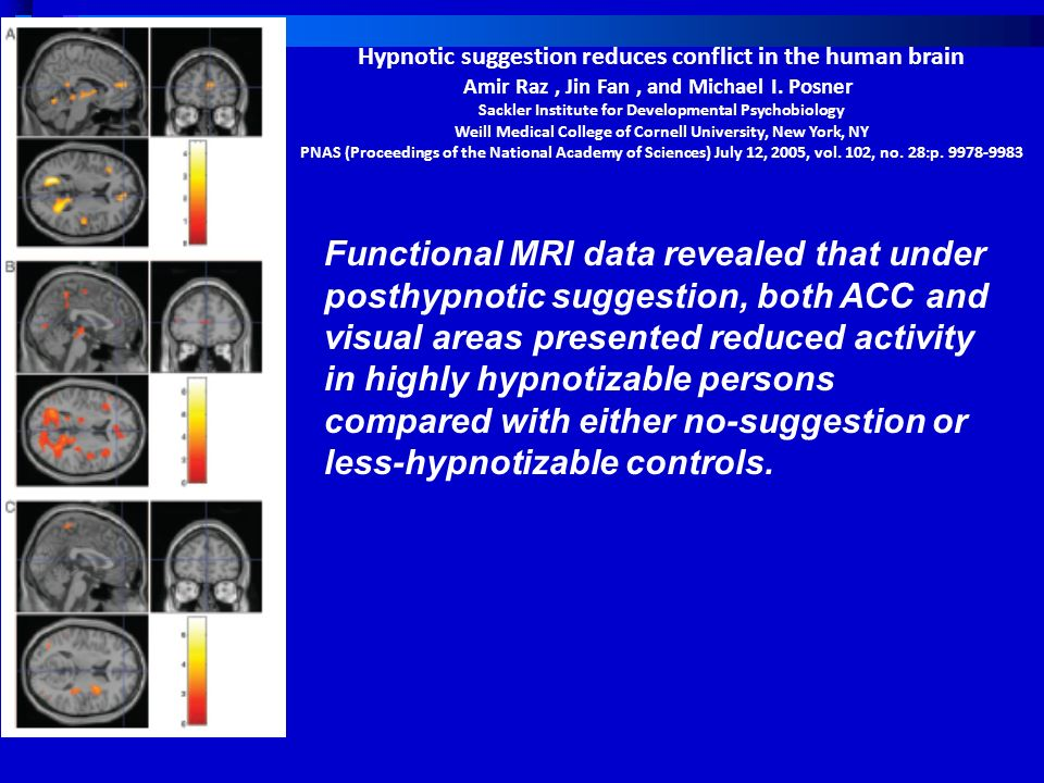Hypnotic suggestion reduces conflict in the human brain