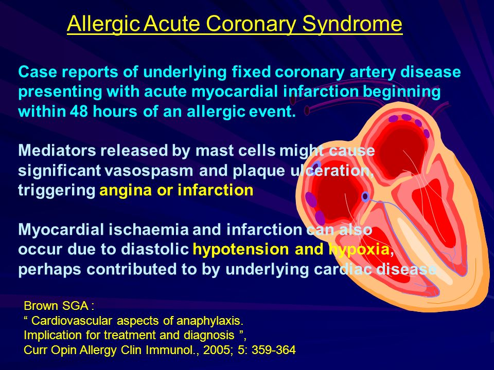 Allergic Acute Coronary Syndrome