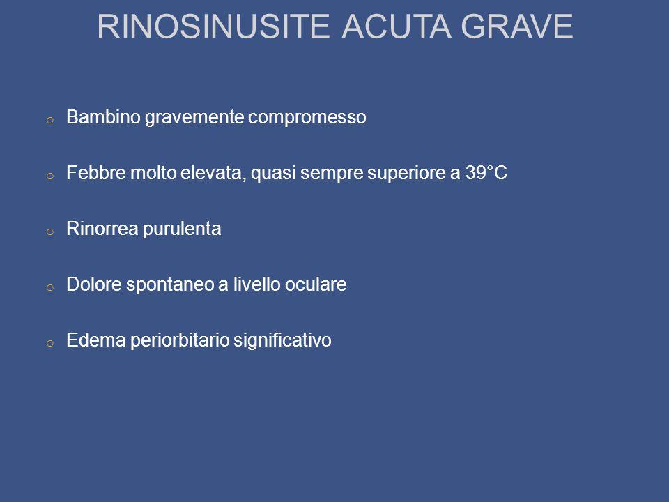 RINOSINUSITE ACUTA GRAVE