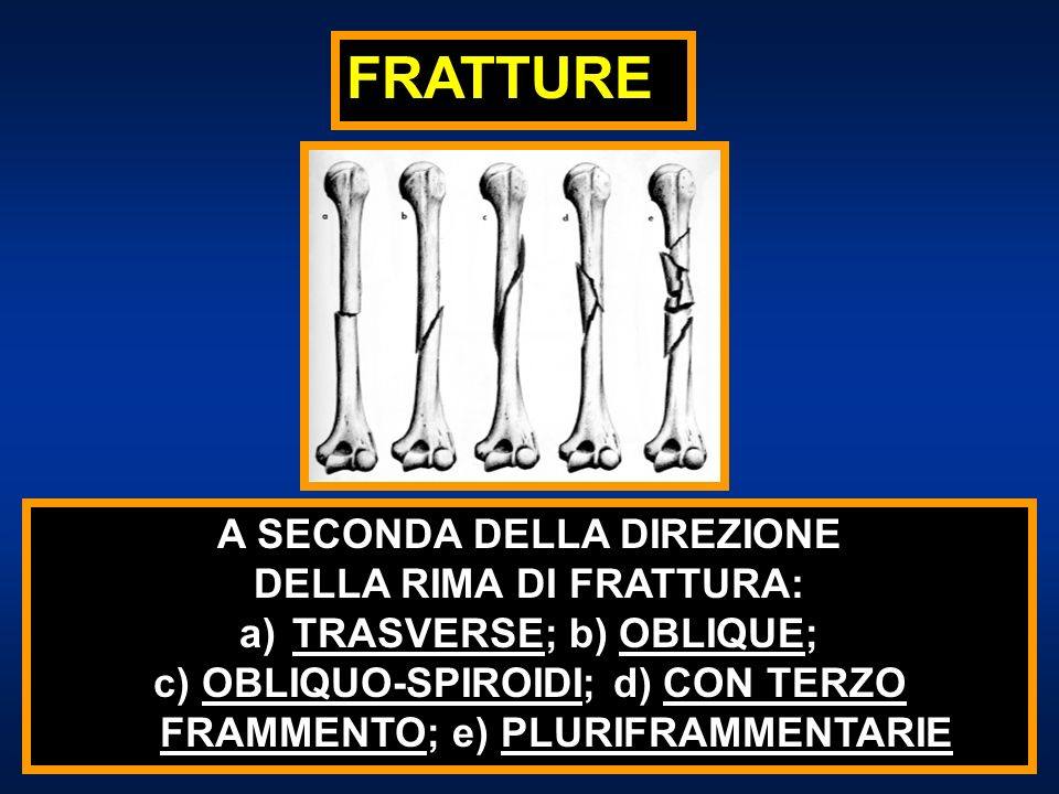 FRATTURE A SECONDA DELLA DIREZIONE DELLA RIMA DI FRATTURA: