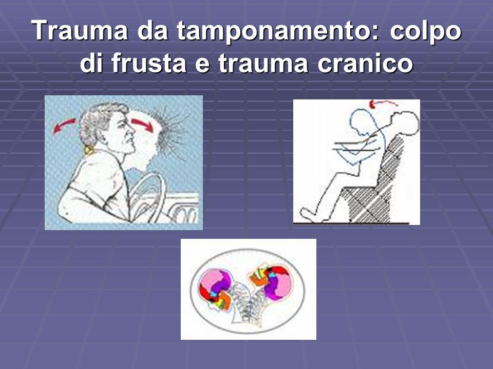 Trauma da tamponamento: colpo di frusta e trauma cranico