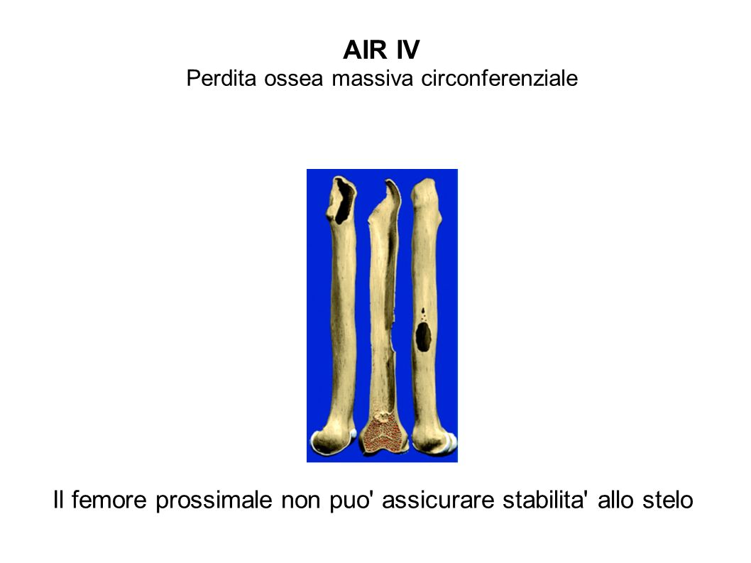 Perdita ossea massiva circonferenziale