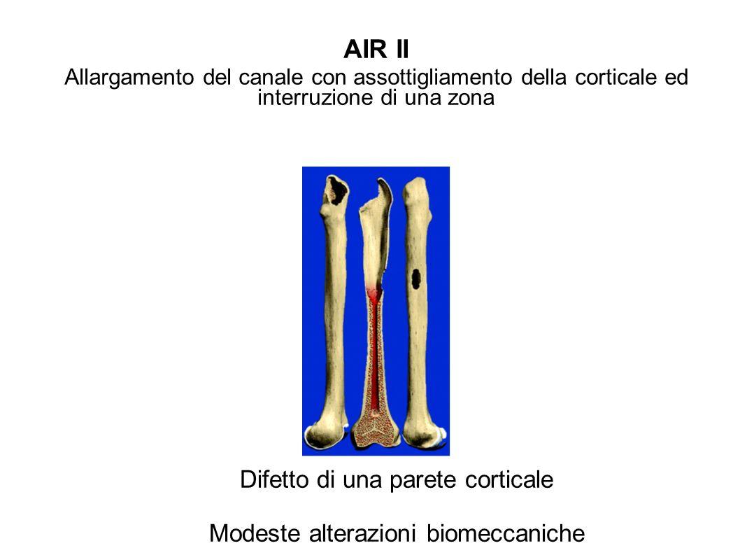 AIR II Difetto di una parete corticale
