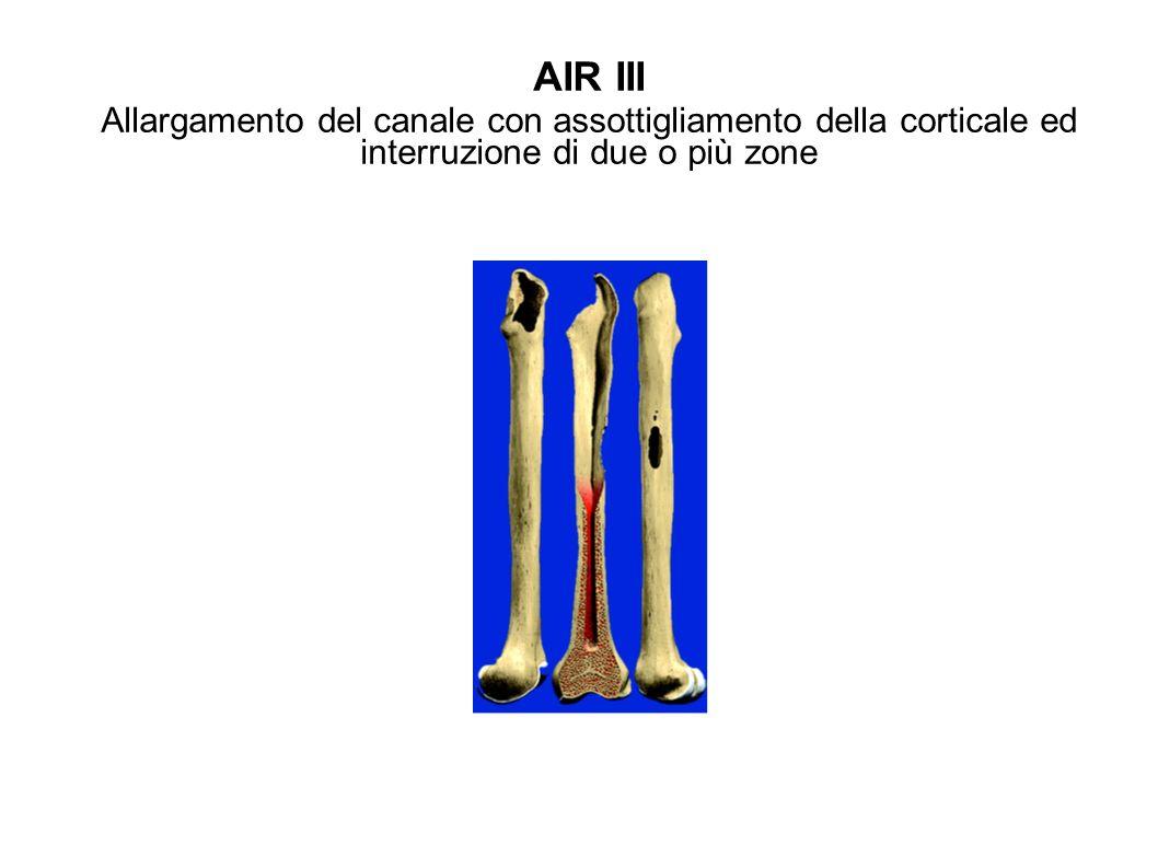 AIR III Allargamento del canale con assottigliamento della corticale ed interruzione di due o più zone.