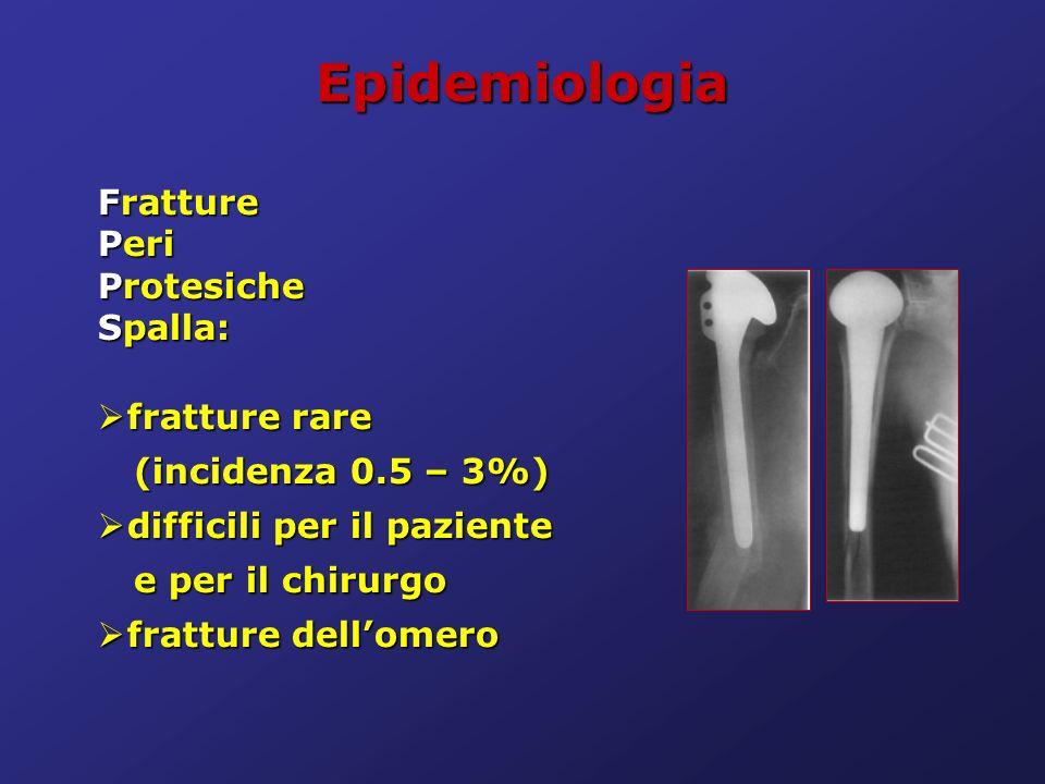 Epidemiologia Fratture Peri Protesiche Spalla: