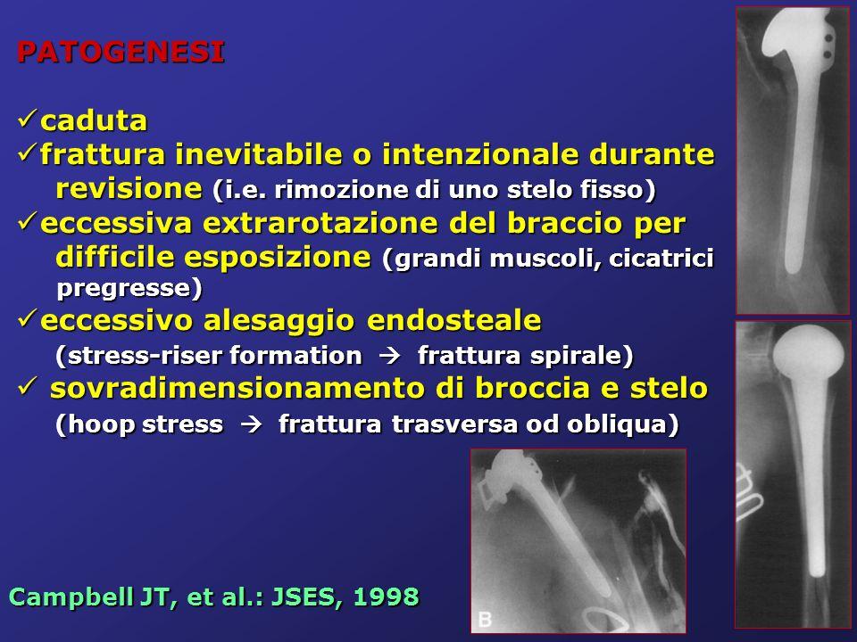 PATOGENESI caduta. frattura inevitabile o intenzionale durante revisione (i.e. rimozione di uno stelo fisso)