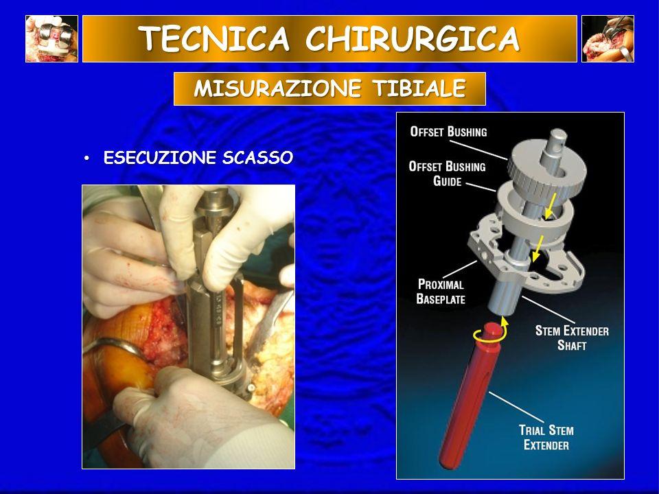 TECNICA CHIRURGICA MISURAZIONE TIBIALE ESECUZIONE SCASSO