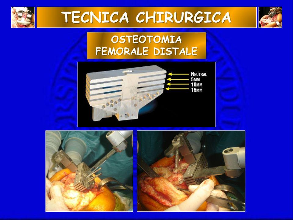 OSTEOTOMIA FEMORALE DISTALE