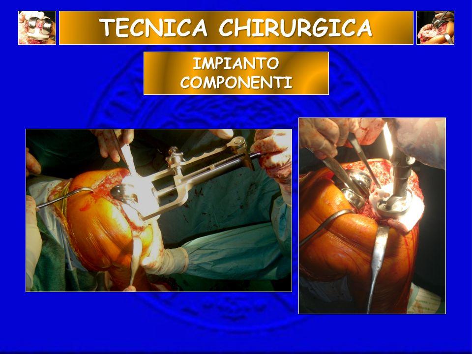 TECNICA CHIRURGICA IMPIANTO COMPONENTI